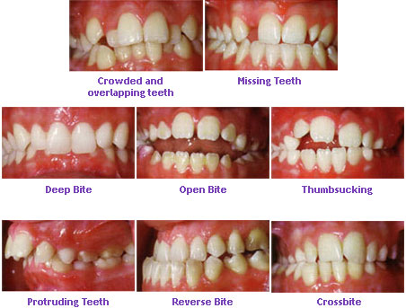 Childrens orthodontics