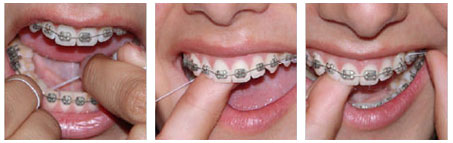 Cleaningyourbraces-flossing