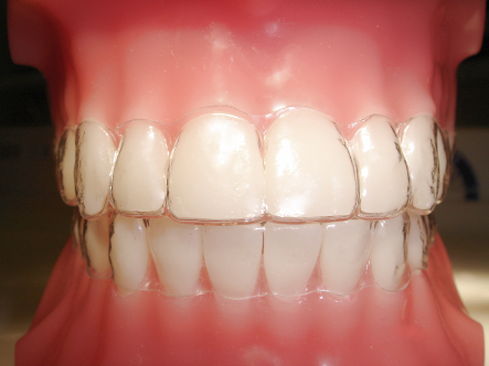 Orthosmile Orthodontics offers both ClearSmile and Invisalign.