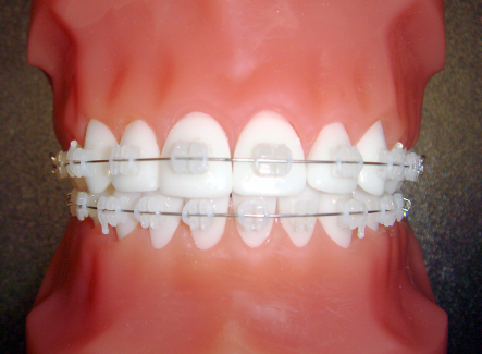 Orthosmile Orthodontics offers patients clear braces: a more discreet option over traditional braces.