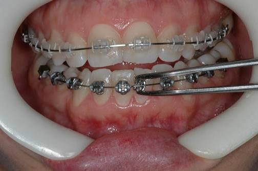 Affordable braces for adults in charlotte nc