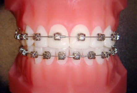 At Orthosmile Orthodontics in Brisbane we offer traditional metal braces.