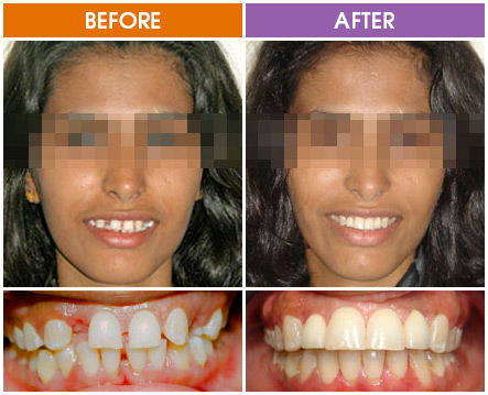 Braces Before And After | Brisbane | Orthosmile