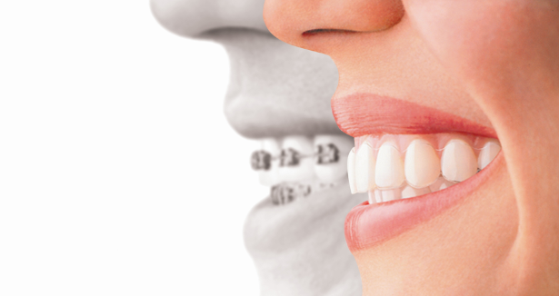 In this post we are going to look at the difference between looking after traditional braces and looking after clear aligners like Clearsmile and Invisalign.