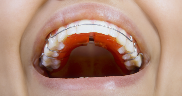 Failure to wear a retainer may result in relapse. This means your teeth return to their original position.