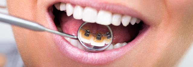 lingual-braces-brisbane